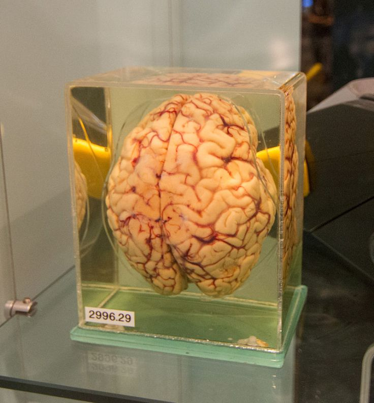 Human_brain_preserved_in_formaldehyde